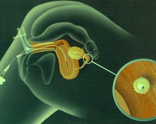 artificial-insemination-iui